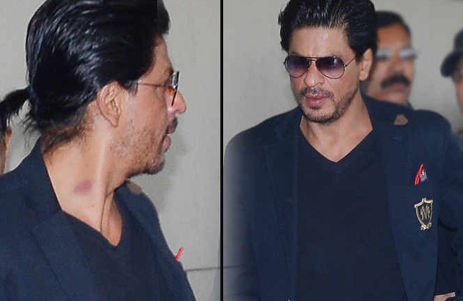 Is that a love bite on Shahrukh Khan's Neck?