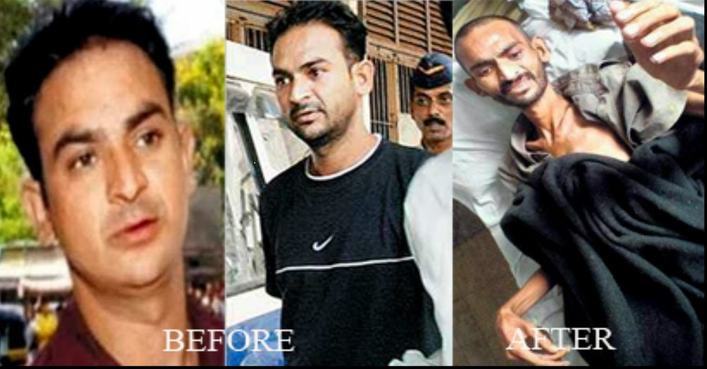 Ravindra Patil Before and after pictures