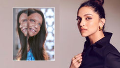 Heard This? Deepika Padukone burned off her 'Chhapaak' prosthetics