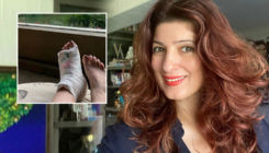Twinkle Khanna pokes fun at her broken leg; says,