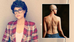 Sharing her topless pic, Tahira Kashyap pens a beautiful poem for cancer survivors