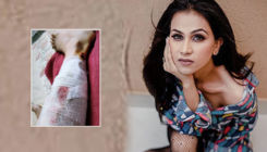 'Mujhse Shaadi Karoge' winner Aanchal Khurana meets with an accident; shares video of her injured leg